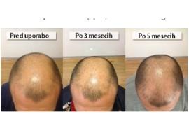 izpadanje las sampon
